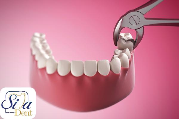 چراحی دندان عقل