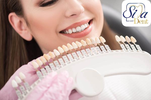 متخصص کامپوزیت دندان در تهران