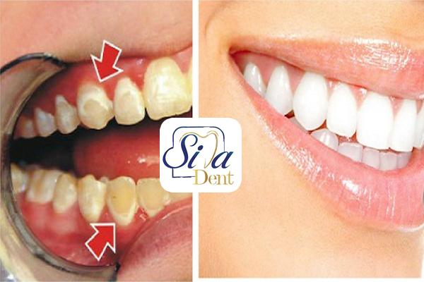 تاثیر جوش شیرین بر دندان