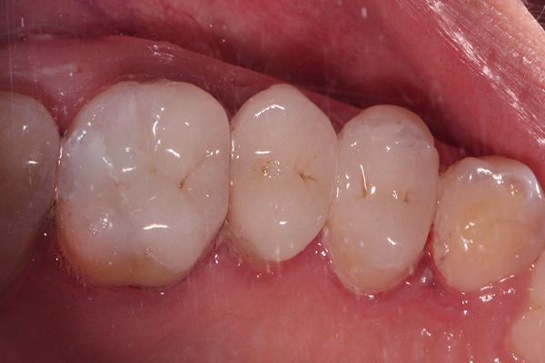 ترمیم کامپوزیت دندان های عقبی