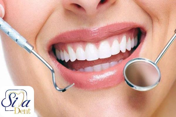 ابسه دندان