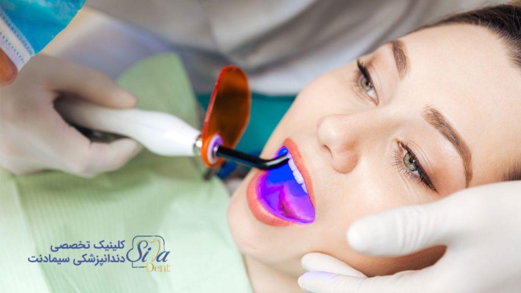 تصویر بلیچینگ دندان با لیزر