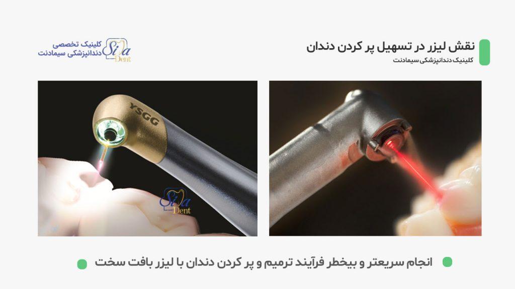 کاربرد لیزر در تسهیل پر کردن دندان ها