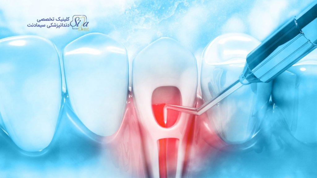 لیزر دندانپزشکی و نقش آن در ضدعفونی کردن ریشه کانال طی فرآیند روت کانال تراپی