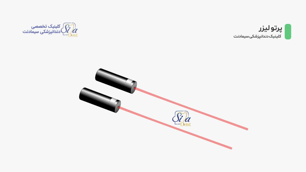 تصویرشماتیک دستگاه لیزر و پرتو لیزر