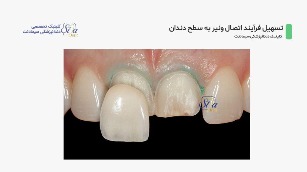 تصویر دندان های آماده شده جهت اتصال لمینت دندان
