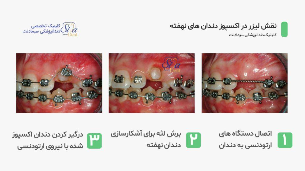 تصویر اکسپوز دندان نهفته در طی ارتودنسی با کمک لیزر