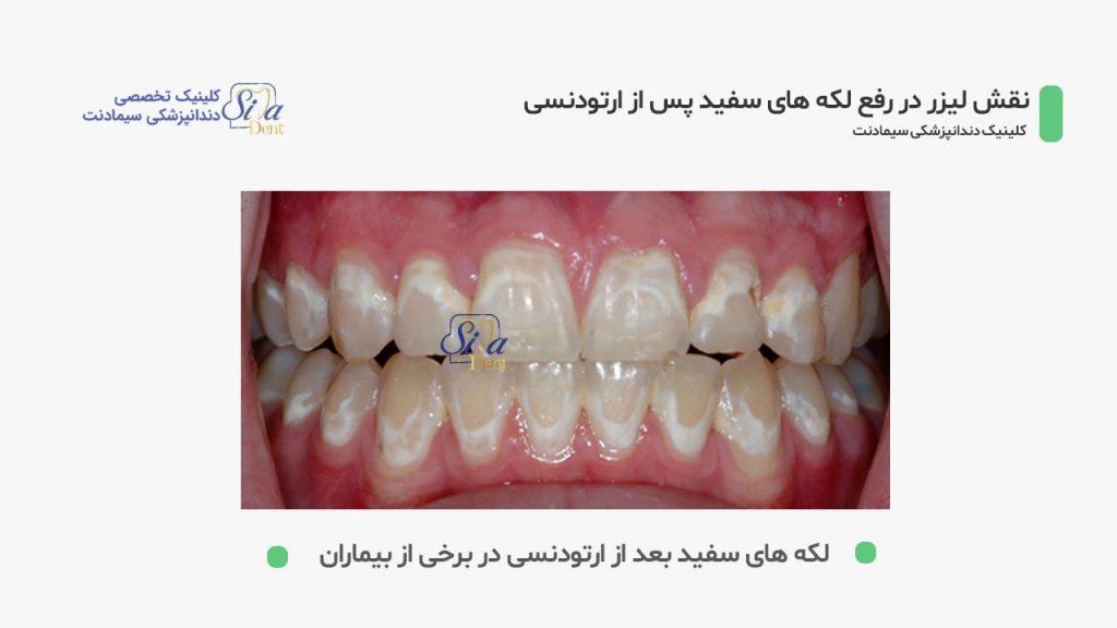 تصور دندان هایی که بعد از براشتن براکت های ارتودنسی دچار لکه های سفید شده اند
