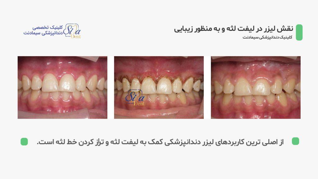 مراحل ژنژیوکتومی با لیزر دندانپزشکی