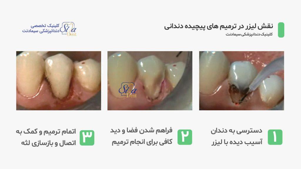 مراحل بیزر کردن بافت لثه طی فرآیند ترمیم کلاس 5 دندان