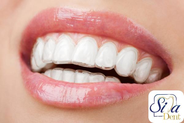 نایت گارد دندانی