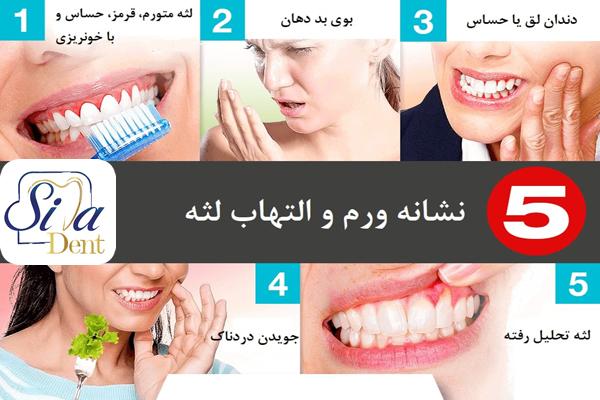 عوامل تشدید کننده بیماری لثه