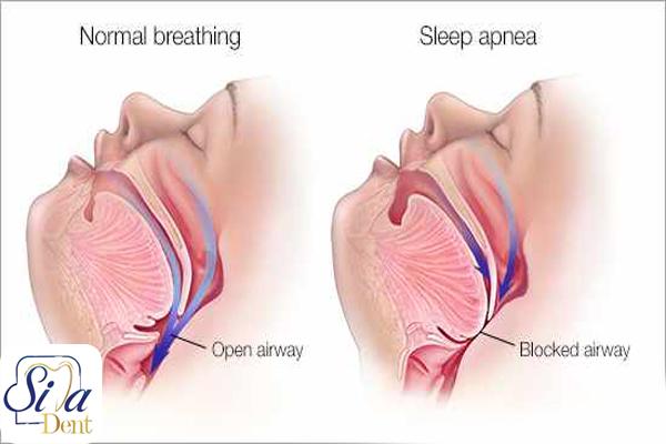 علائم و نشانه های آپنه خواب کدامند؟
