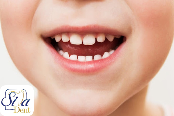 تعداد دندانهای شیری