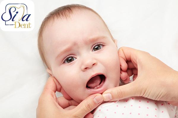 علائم و نشانههای رویش دندان نوزادان