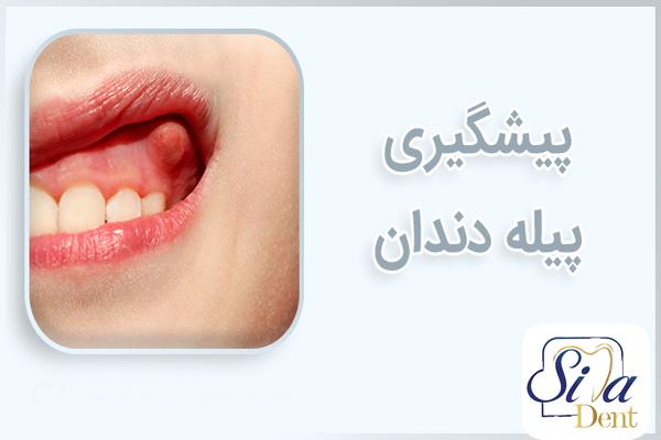 علائم پیله دندان